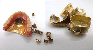 金歯(歯や歯ぐきが付いたままでもOK)